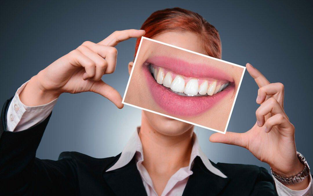 Waarom tandglazuur zo belangrijk is